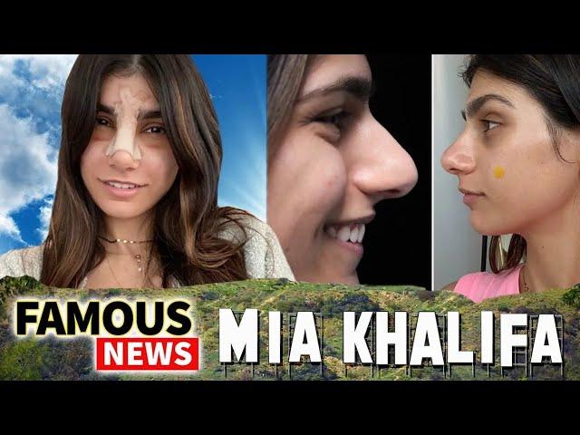 Mia Khalifa Goes Viral Because Of Plastic Surgery / Nose Job | Famous News