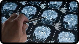 Parkinson und Alzheimer unheilbar? Nein! Neue ursächliche Behandlung