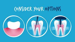 An Effective Alternative to Standard Root Canal Treatment