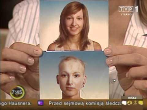 Pozbyć się włosów środków ludowej