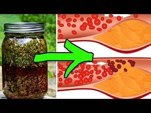 Укроп, мёд и валериана. Всего 1 столовая ложка очистит и укрепит ваши сосуды.
