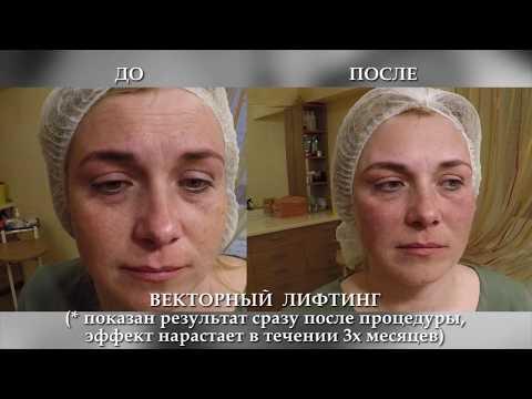 Морщины на лице в 36 лет