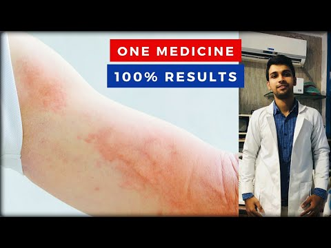 Férgek megelőzése emberben gyógyszerek
