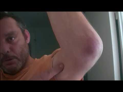 Le traitement du psoriasis odessa