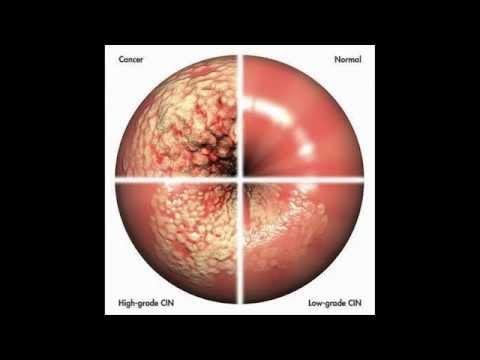 Hipertensión de grado 2 cuadro clínico
