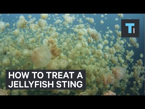 Video How to treat a jellyfish sting