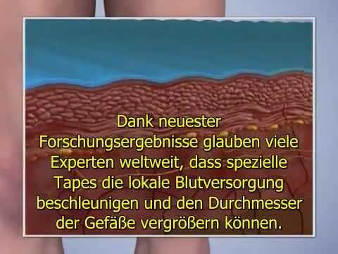 Atopitscheskogo der Hautentzündung die Leber