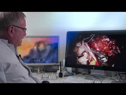 Aggressiver Prostata-Krebs
