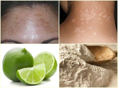 Como quitar el paño o melasma con estos remedios fáciles y rápidos | Manchas blancas de la piel