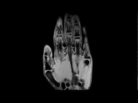 Massagen mit zervikaler Osteochondrose