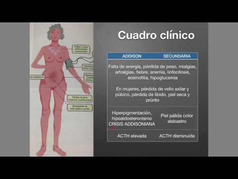 Hipertensión portal Etiología tratamiento clínico patogénesis
