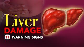 Liver Damage - 11 Warning Signs