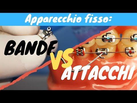 Bande VS attacchi (apparecchio fisso)