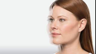 Kybella For Double Chin  Information Video