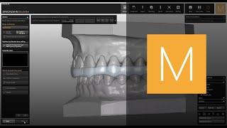 Zirkonzahn CAD/CAM Software-Module Bite Splints
