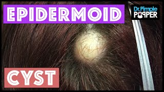 Find Out What Kind of Cyst is being Excised.. Pilar or Epidermoid?