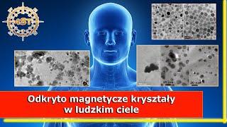 Miliardy nanokryształów magnetytu odkryte w ludzkim mózgu
