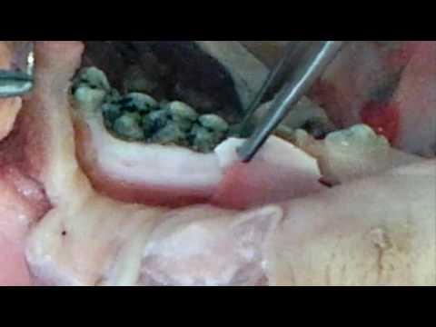 Практикум по пластике мягких тканей десны в области зубов и имплантатов. Часть 5