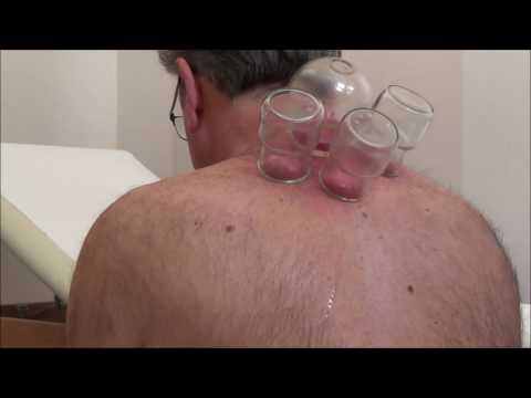 Ernia ginnastica trattamento toracica della colonna vertebrale