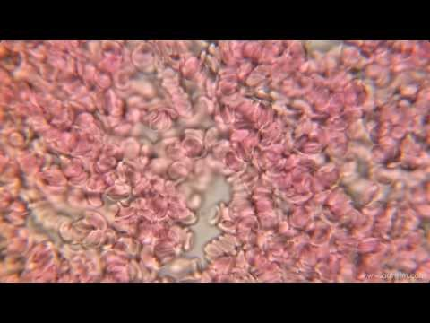 Blood On 1000x Microscope HD 1080p Mp3