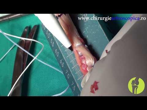 Tratamentul deformării umărului