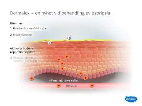 Longuent du psoriasis sur la peau de la poudre