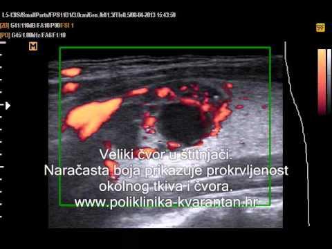 Hipertenzija liječenje ko diroton