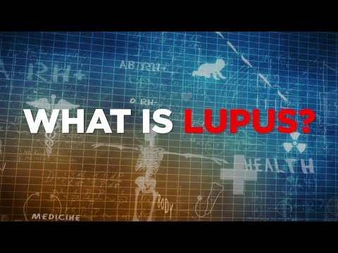 What is Lupus? | Health