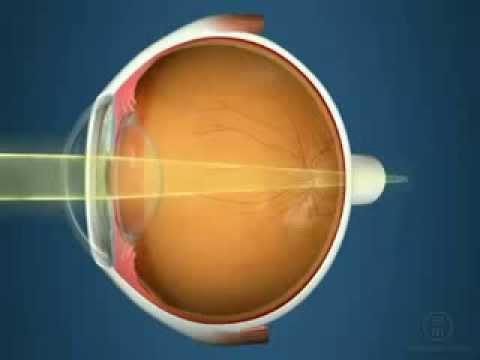 Лазерная коррекция зрения ласик и фемтоласик