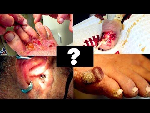 Vaccino papilloma virus quanto dura