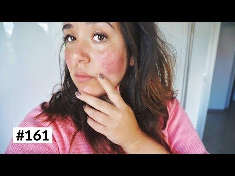 Das Erscheinen des Pigmentfleckes auf der Haut