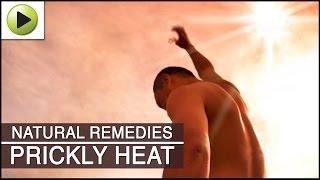 Skin Care - Prickly Heat - Natural Ayurvedic Home Remedies