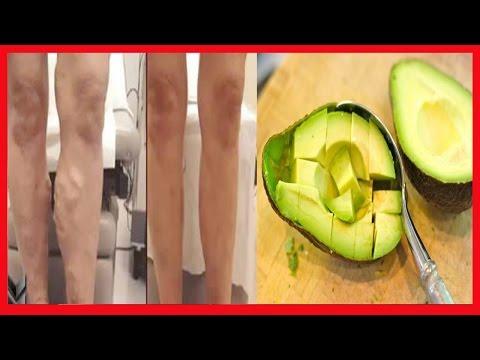 Recepção vitaminas em diabetes