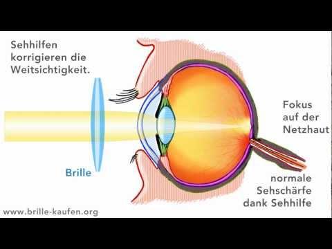 O scădere accentuată a amețelii vederii