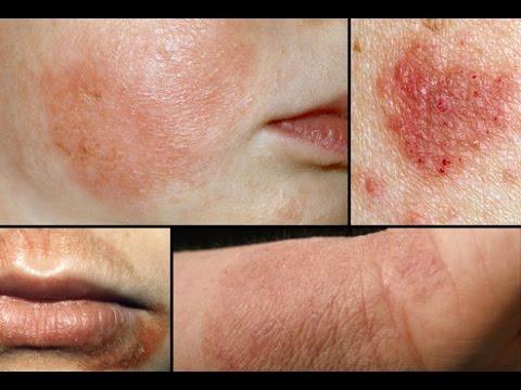 Dermatite de atopic agravações sazonais