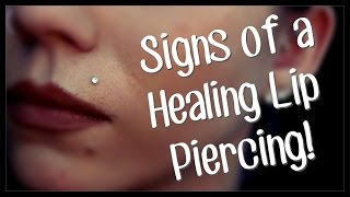 Signs Of A Healing LIP Piercing!