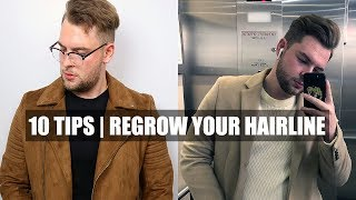 10 Quick Tips| How To Stop A Receding Hairline & Receding Hairline Regrowth