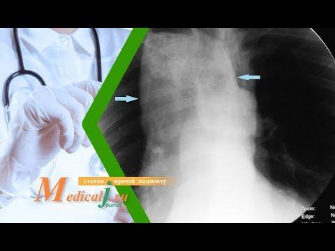 Ахалазия кардии: что это? Какие симптомы? Как лечить?