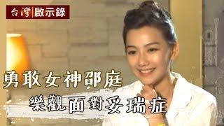 「勇敢女神邵庭,樂觀面對妥瑞症」1030810-2 - 台灣啟示錄