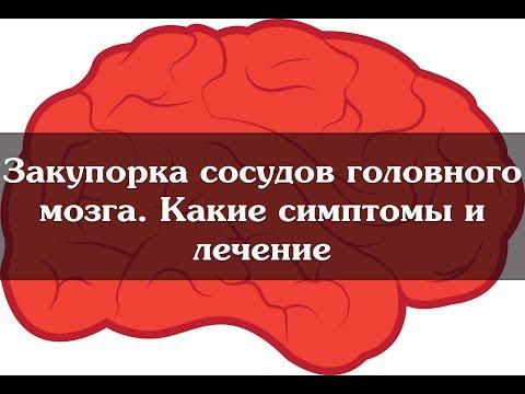 Закупорка сосудов головного мозга.  Какие симптомы и лечение
