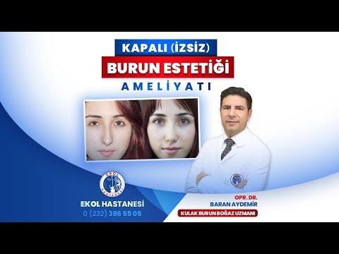 Kapalı (İzsiz) Burun Estetiği Ameliyatı - Opr. Dr. Baran Aydemir - İzmir Ekol Hastanesi