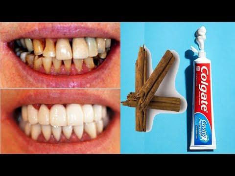 العرب اليوم - وصفة بسيطة لتبيض الأسنان بشكل سريع