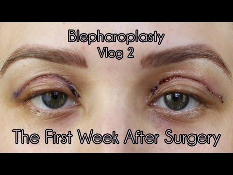 My Eyelid Surgery 1st Weeks of Recovery | Cosmetic Blepharoplasty Diary Part 2