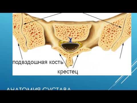 Лечение артроза крестцово подвздошных сочленений.  Артроз крестцово подвздошных сочленений.