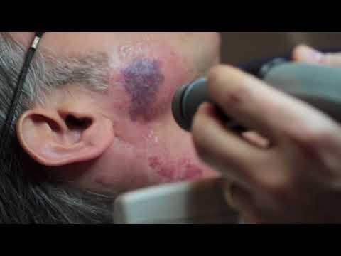 Белое пигментное пятно на половых губах
