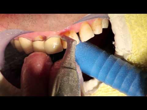 Die Operation bei von warikosa