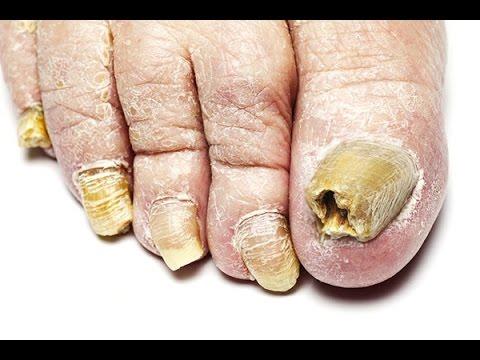 Gribok auf den Nägeln der Beine mikospor