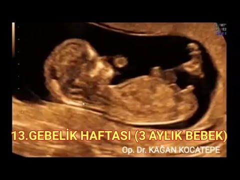 13. gebelik haftasında, yani 3 aylık gebelikte bebek nasıl görünür, açıklamalı ultrason görüntüleri