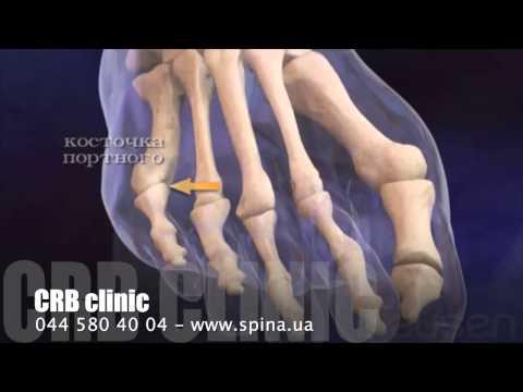 Как лечить шишки на пальцах ног керосином