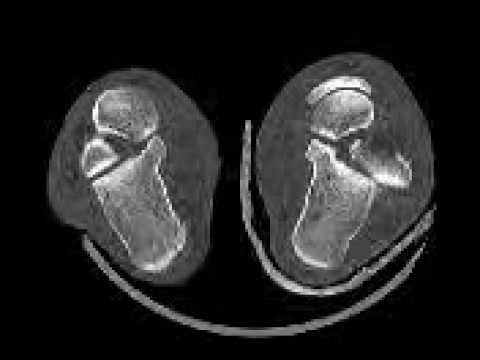 Ultraschall des Kniegelenks im Südwesten